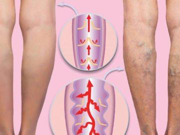 настойка валерианы при варикозе